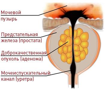 Опухоли предстательной железы.Аденома