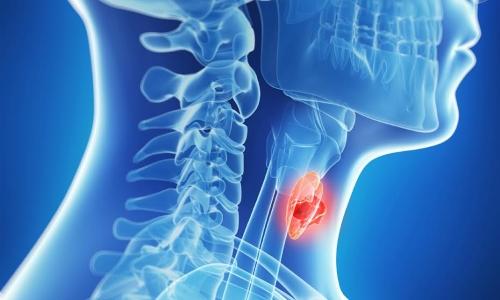 Опухоли щитовидной железы