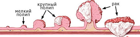 Полип на стенке органа