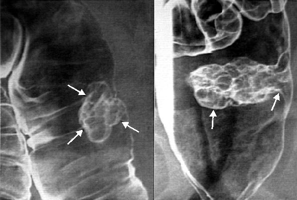 Полипоз толстого кишечника