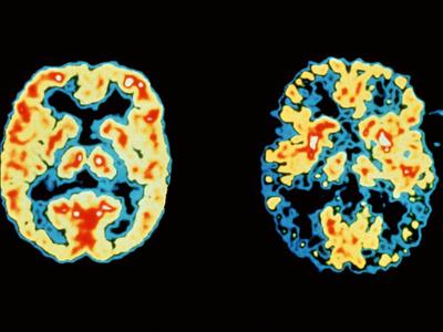 Позитронно-эмиссионная томограмма мозга здорового человека