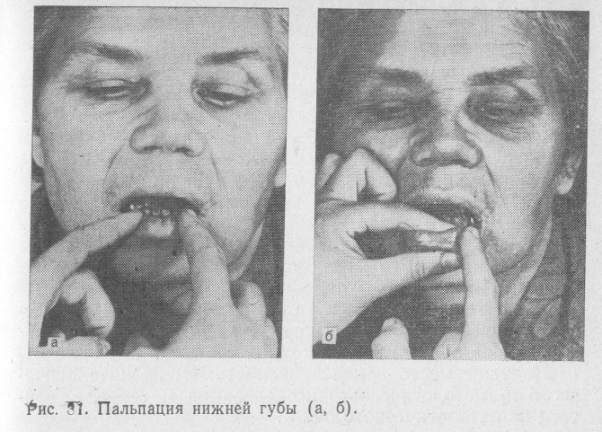 Диагностика рака губы