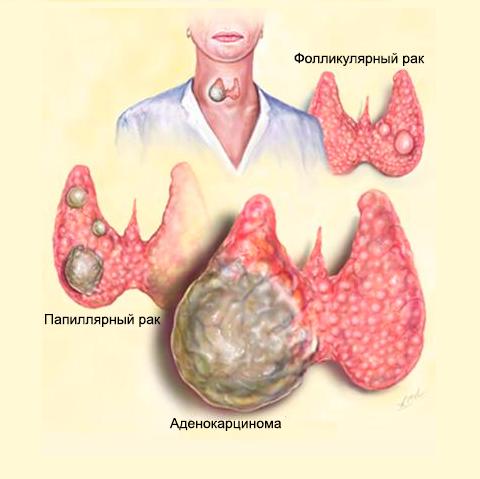 Папиллярный рак