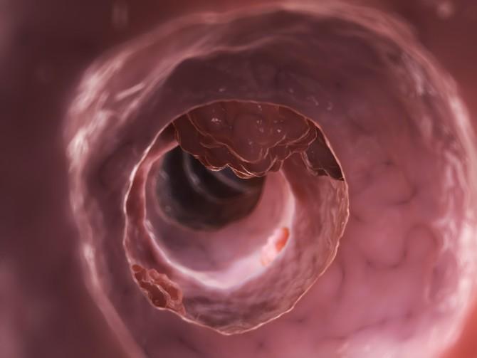 Рак сигмовидной кишки