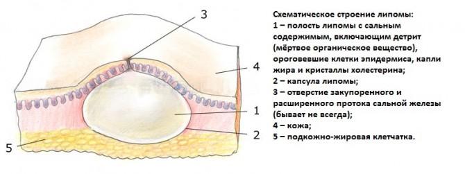 Схема липомы