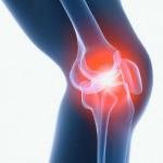Опухоль в колене
