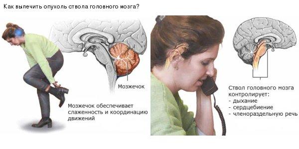 Опухоль ствола головного мозга