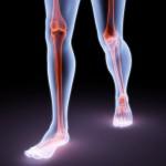Рак ноги