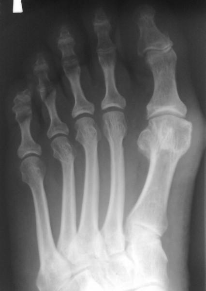 Опухоль на пальце ноги