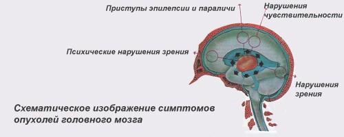 Рак головного мозга симптомы