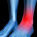 Опухоль ноги в щиколотке
