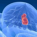 Адъювантная химиотерапия при раке молочной железы