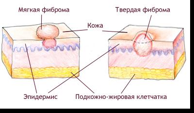 Как лечить фиброму?