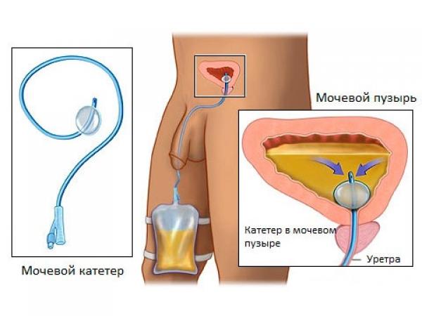 Если болит простата как лечить