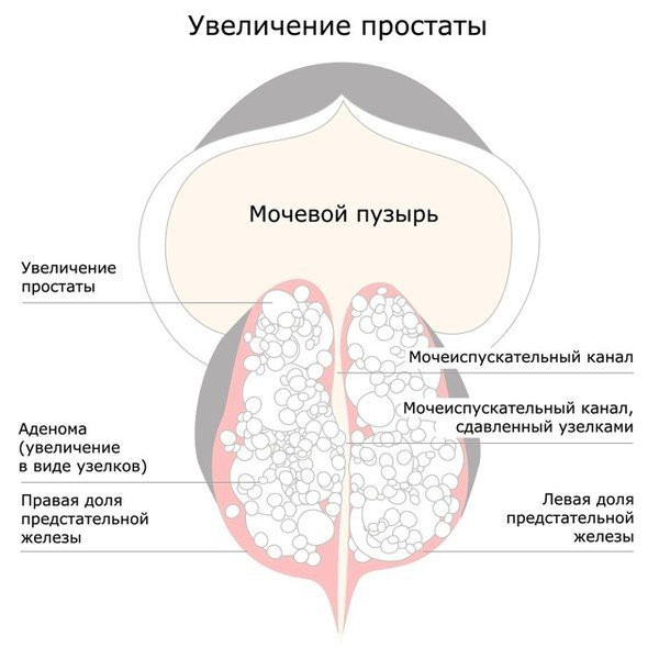 Рак аденома предстательной железы. Симптомы и лечение