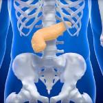 Рак поджелудочной железы.Симптомы