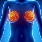 Протоковая карцинома молочной железы