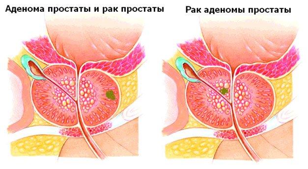 Антибиотики для лечения инфекционного простатита
