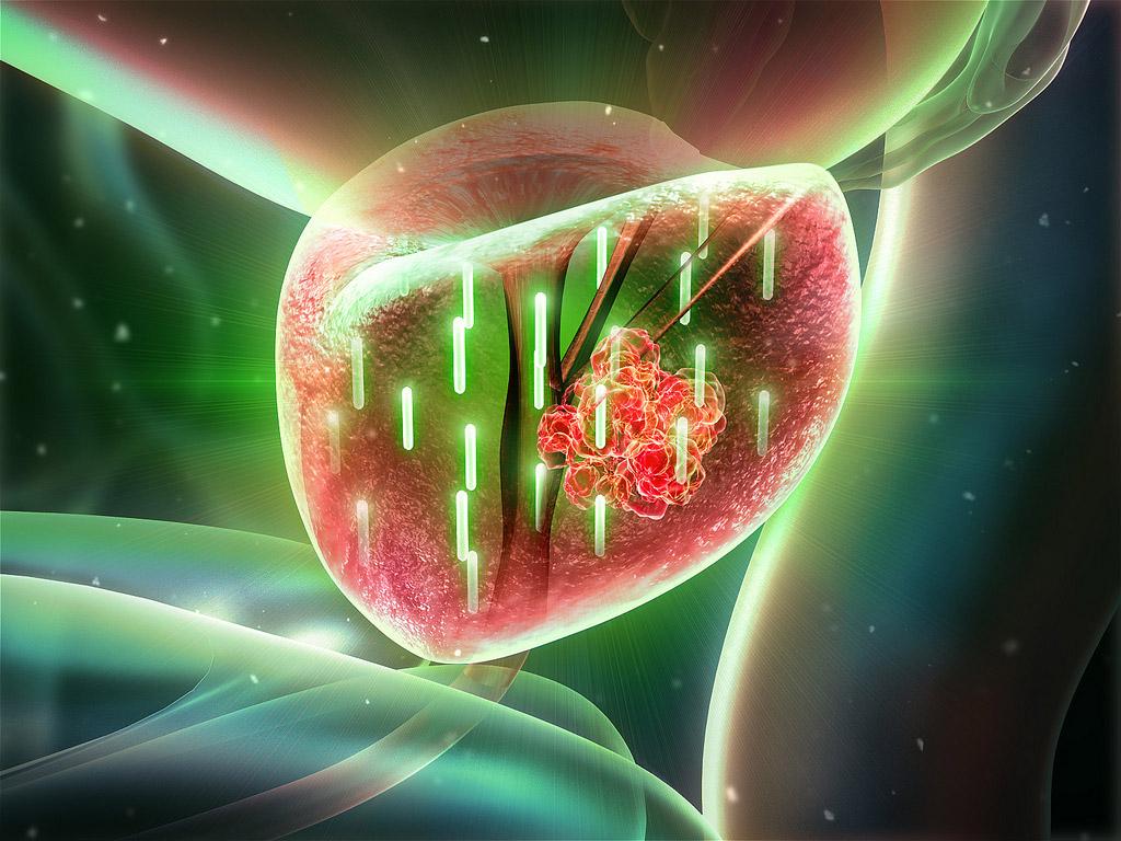 Настойка болиголова при раке простаты