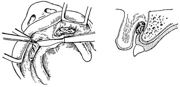 Фибромы полости рта