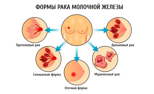 Муцинозная карцинома молочной железы