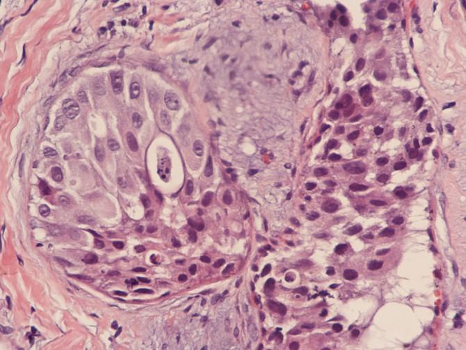 Опухоль на голове в виде шишки