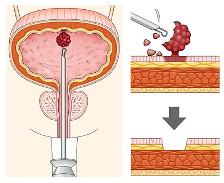Хирургическое вмешательство при раке мочевого пузыря