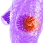 Инвазивная карцинома молочной железы