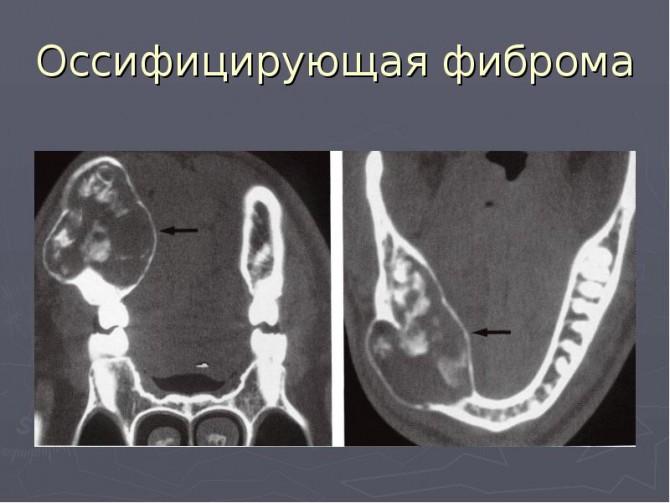 Компьютерная томография фибромы