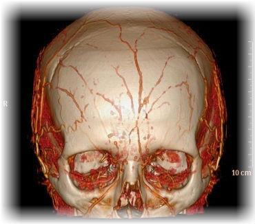 Фиброма на голове