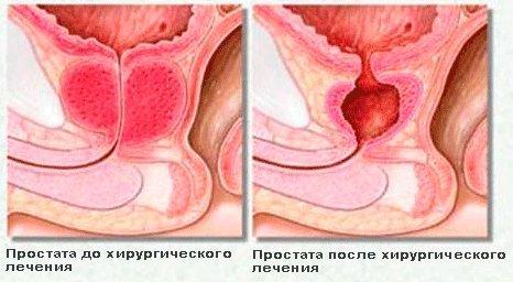Простат специфический антиген нормы