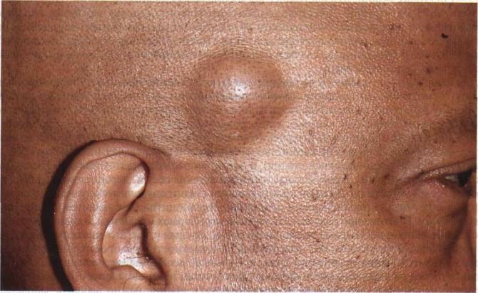Липома - опухоль из жировой ткани