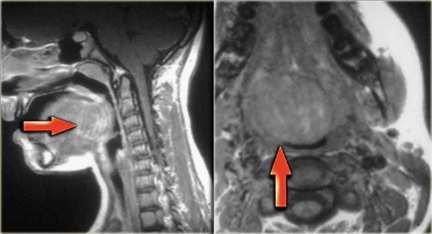 МРТ щитовидной железы