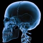Опухоли основания черепа