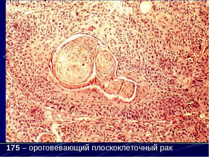 Плоскоклеточная ороговевающая карцинома