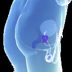 Питание при аденоме простаты у мужчины