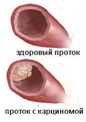 карцинома молочной железы прогноз
