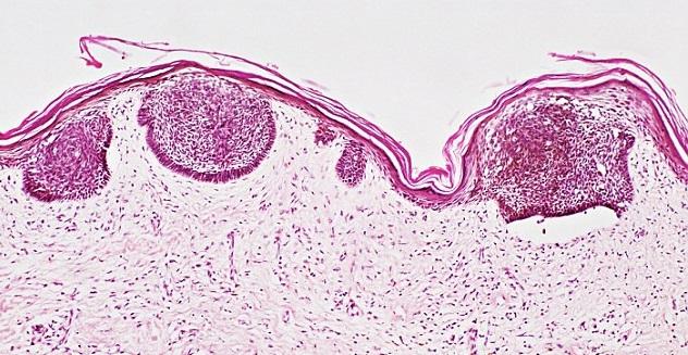Признаки и лечение рака кожи