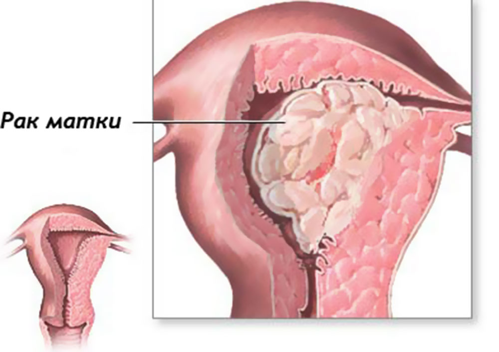 Рак матки: классификация болезни, степени рака, лечение