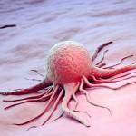 Последствия после облучения при раке