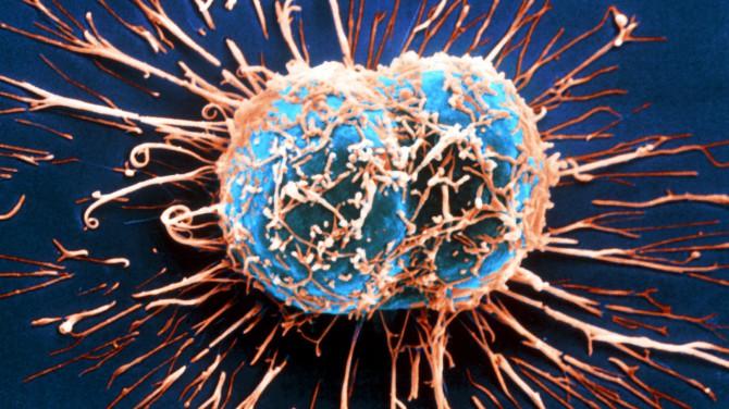 Альтернатива химиотерапии рака