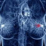 Удаление фибромы