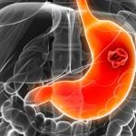 Перстневидноклеточная карцинома желудка