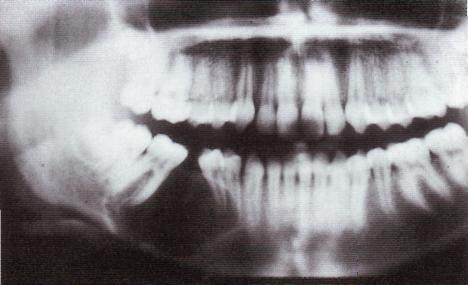 фиброма во рту