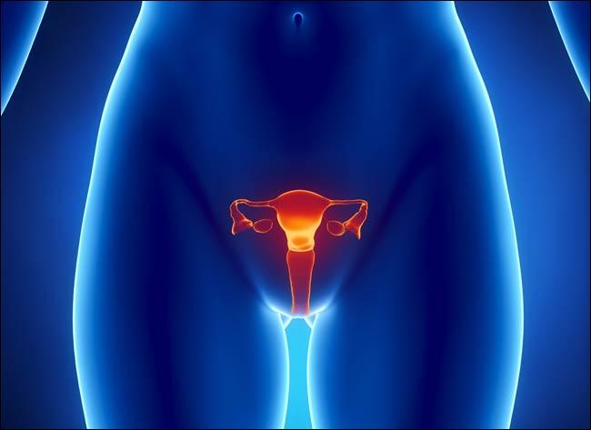Опухоль шейки матки