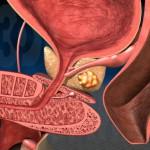 Рак аденома предстательной железы.Симптомы и лечение