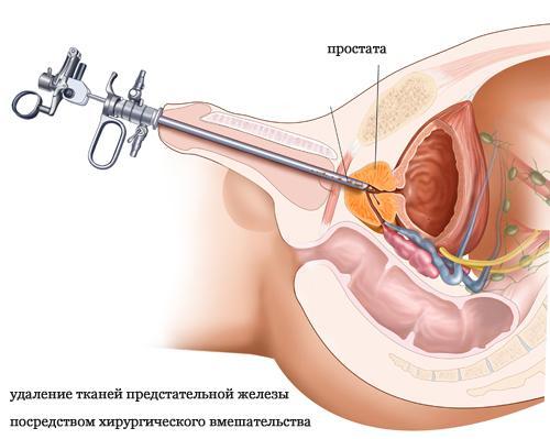 Предстательная железа после удаления