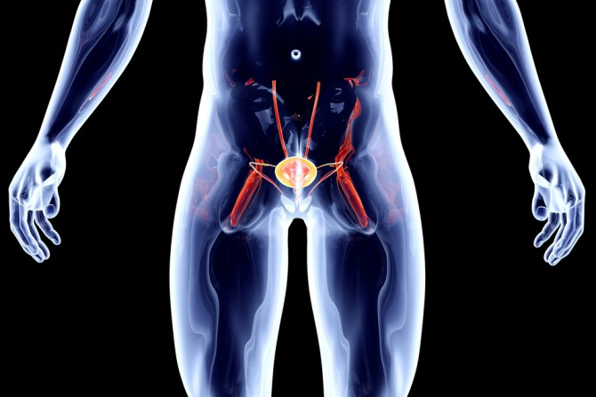 Карцинома предстательной железы