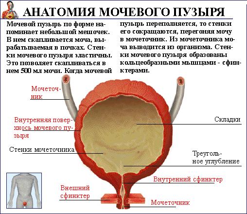 Уротелиальная карцинома