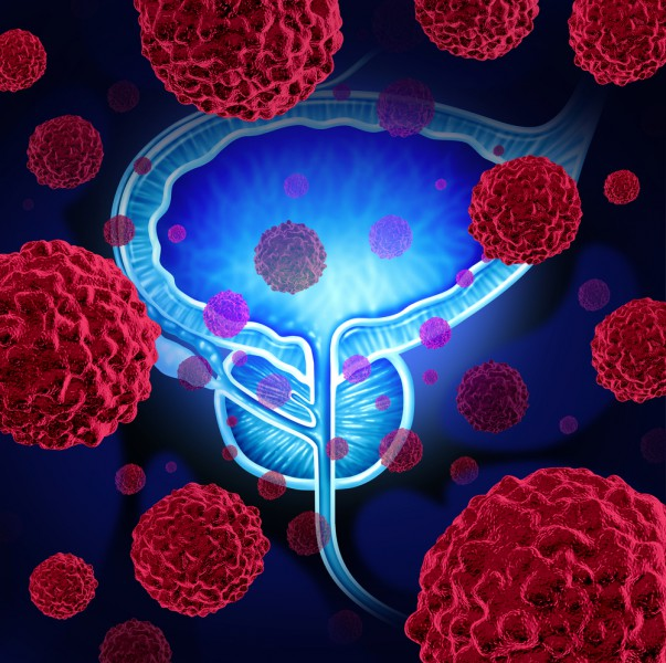 Как проводится операция по удалению аденомы простаты